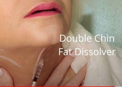 Double Chin | Fat Dissolver – Dr. Lipo V | Aging Neck
