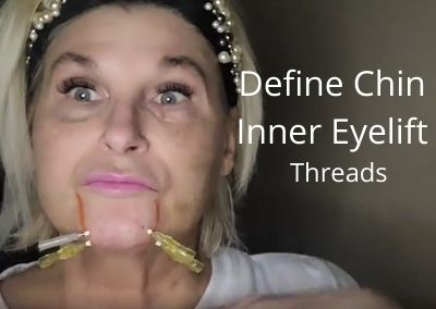 Define Chin | Inner Eyelift | Threads