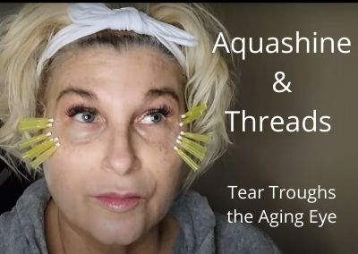Aquashine and Threads for Tear Troughs the Aging Eye