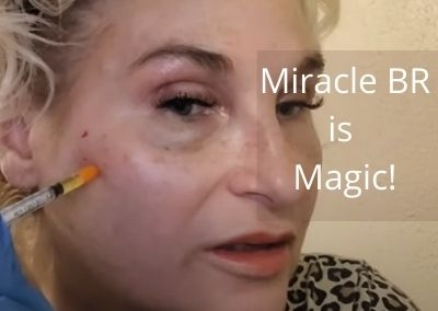 Miracle BR is Magic!
