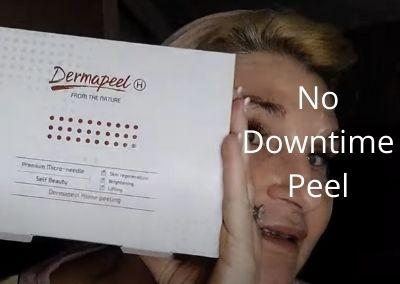 No Down Time Peel |Dermapeel