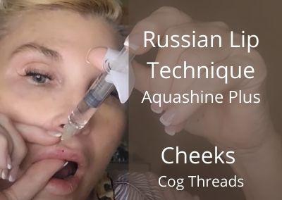 Russian Lip Technique | Aquashine Plus |Cheeks | Cog Threads