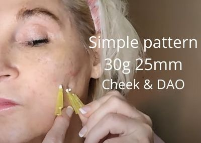 Simple pattern 30g 25mm for Cheek Volume and DAOs