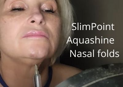 SlimPoint Fat Dissolver | Aquashine | Nasal folds