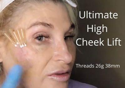 Threads 26g 38mm | Ultimate High Cheek Lift