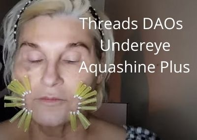 Aquashine Plus | Threads DAOs | Undereye