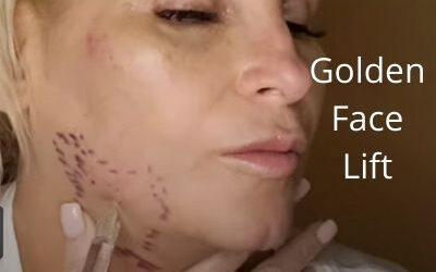 Golden Face  Lift   PDRN Elaxen   Nabota TOX