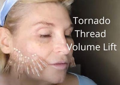 Tornado Thread for Volume Lift