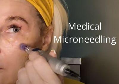 Medical Microneedling