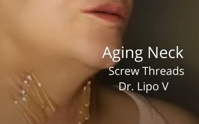 Aging Neck   Dr. Lipo V – Fat Dissolver and Screw Threads   Acecosm.com