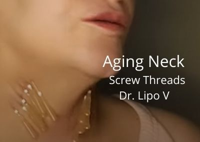 Aging Neck | Dr. Lipo V – Fat Dissolver and Screw Threads | Acecosm.com