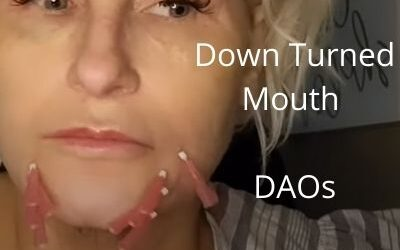 Down Turned Mouth    DAOs   Ear Lobes    Aquashine   G-Line Gold Threads 99.99%    Acecosm.com