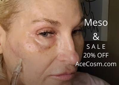 Meso |  20% off Sale – Acecosm.com