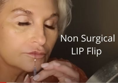 Non Surgical LIP Flip   D23 Cog Threads  Acecosm.com   How to Stop a Disaster