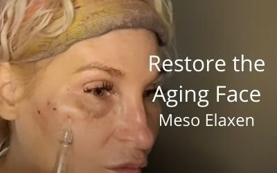 Restore the Aging Face – Meso Elaxen PDRN   Acecosm.com   #facelift #DIY