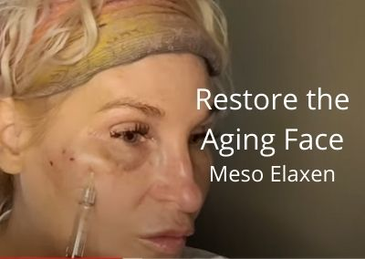 Restore the Aging Face – Meso Elaxen PDRN | Acecosm.com | #facelift #DIY