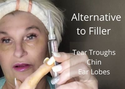 Alternative to Filler   Tear Troughs, Chin, and Rejuvenation of Ear Lobes   Safe and Easy