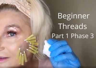 Beginner Threads – Part 1 phase 3   Total Cheek Restoration   No need for filler !