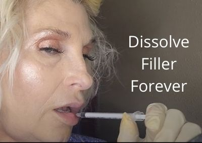 Dissolve Filler Forever