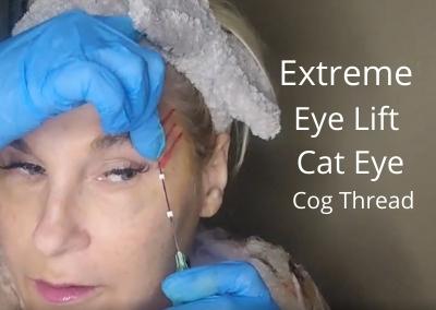 Extreme Eye Lift | Cat Eye | Cog Thread