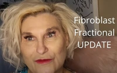 Fibroblast & Fractional Update   Unsettled Threads   Let's Get Ready for Fall