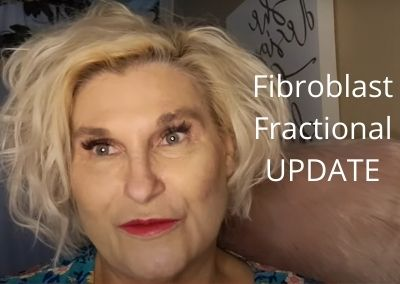 Fibroblast & Fractional Update | Unsettled Threads | Let's Get Ready for Fall