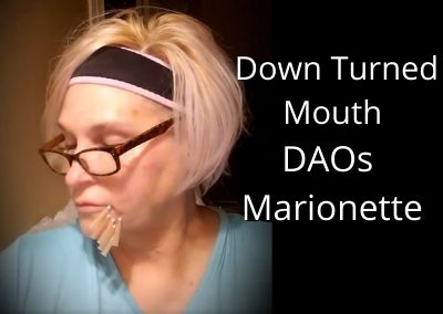 Fix Down Turned Mouth | DAOs | Marionette Lines (this video is 6 months old)