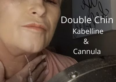 Get rid of Double Chin | Kabelline – Fat Dissolver