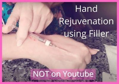 Hand Rejuvenation using Filler (Tesoro) | Video NOT on Youtube