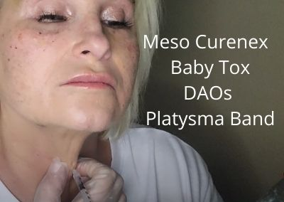 Meso Curenex | Baby tox  |DAOs | Platysma Band