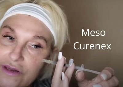 Meso Curenex and a little Chat