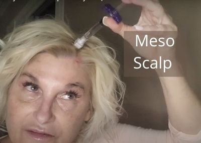 Meso your Hair Scalp with Hyaron, Stem Cells  | Treatments for All Ages and Hair Type