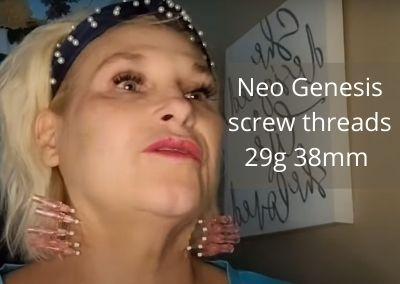Neo Genesis Screw Threads – 29g 38mm