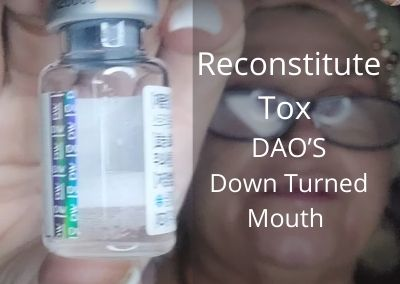 Reconstitute Tox   Treat DAO'S and Down Turned Mouth with Threads