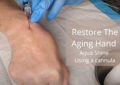 Restore The Aging Hand | Aqua Shine | Using a cannula