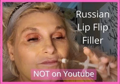 Russian Lip Flip using Filler | Video Not on Youtube