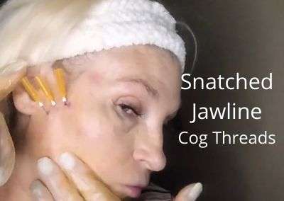 Snatched Jawline    Cog Threads   Aging Face