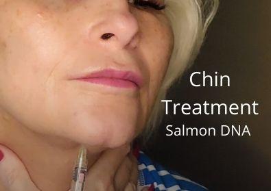 Chin Treatment   Salmon DNA   Huge giveaway