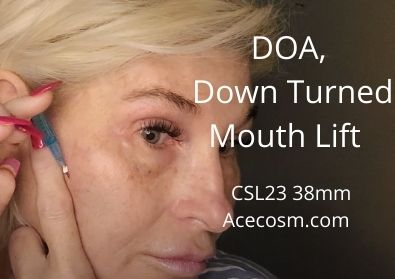 Quick DOA and Down Turned Mouth Lift | CSL23 38mm | Acecosm.com