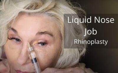 Liquid Nose Job – Rhinoplasty